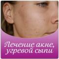 Лечение акне, жирной себореи, угревой сыпи